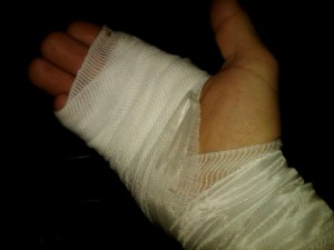 My injured hand
